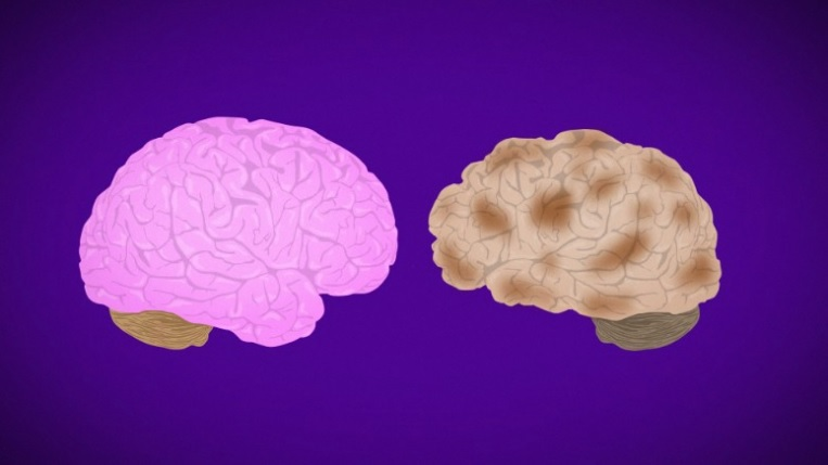 Drugmaker reverses course, plans to seek FDA approval for Alzheimers treatment